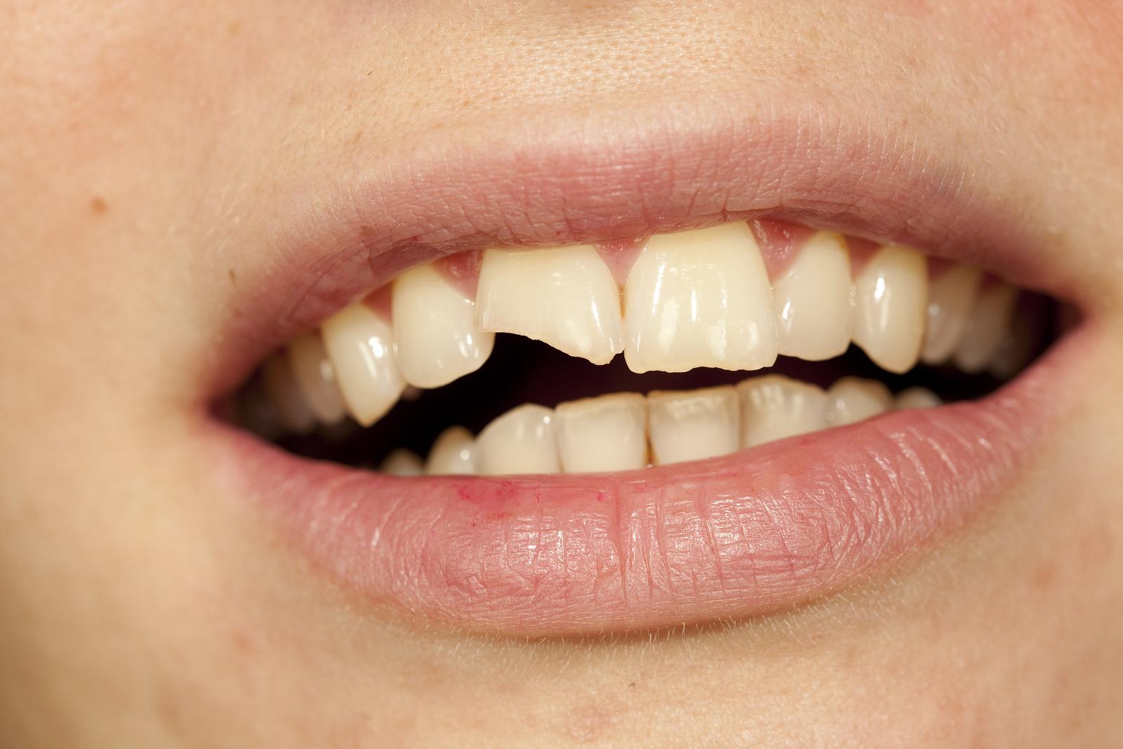 Отломленные зубы сонник