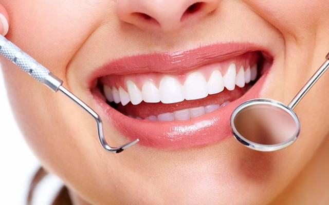 Do you buy teeth whitening products over the counter?