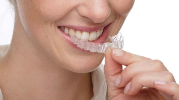 Benefits of Clearpath aligners