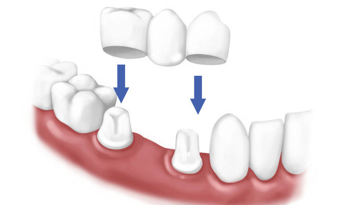 Dental care with Crowns and Bridges