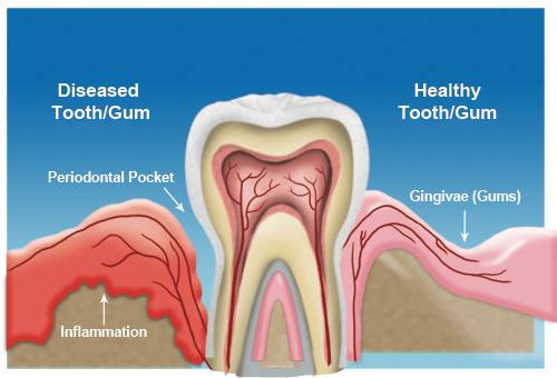 Will gum disease recur after it is treated?
