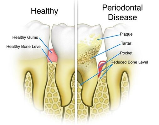 Periodontal therapy treatment