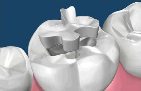 Porcelain Fillings – A long lasting solution for Cavities!