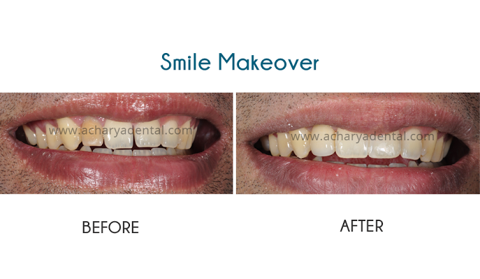 Srikanth's smile makeover