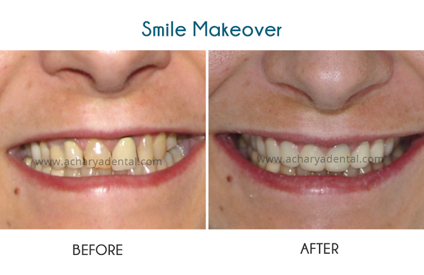 Sophia's smile makeover