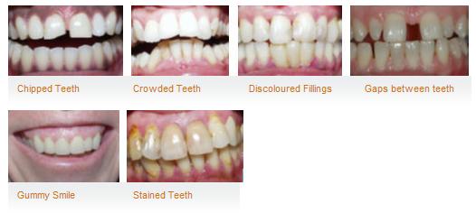 dental-problems-acharya-dental-chennai