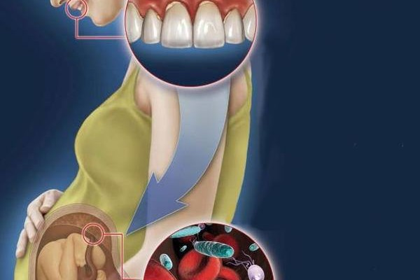 How does pregnancy affect your oral care?